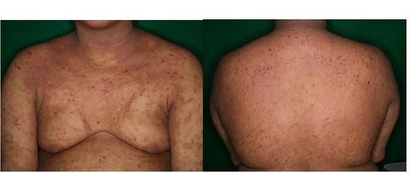色素 沈着 ステロイド レチノイン酸を用いた炎症後色素沈着の治療